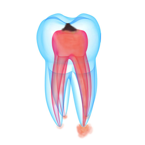 3-periapical-infection