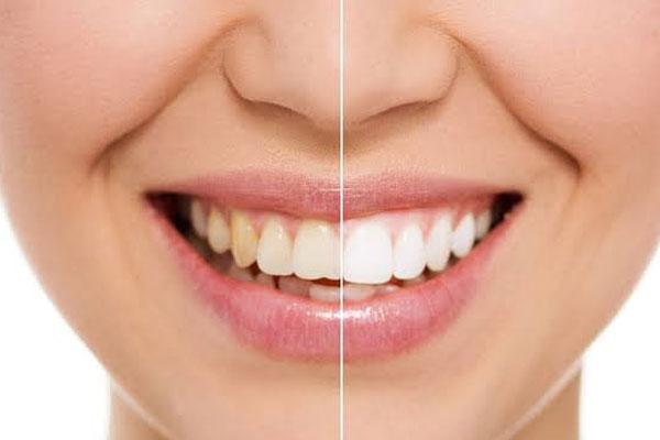 Smile Makeovers | North Rocky Dental
