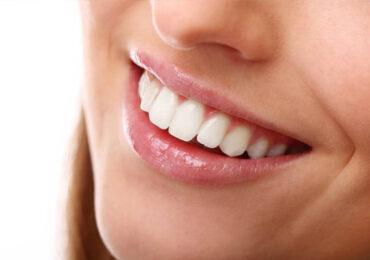 Teeth Cleaning Rockhampton | North Rocky Dental
