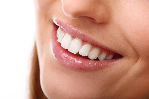 Teeth Cleaning Rockhampton   North Rocky Dental